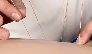Acupuncture and Dry Needling