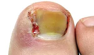 Ingrown Toenails and Nail Surgery